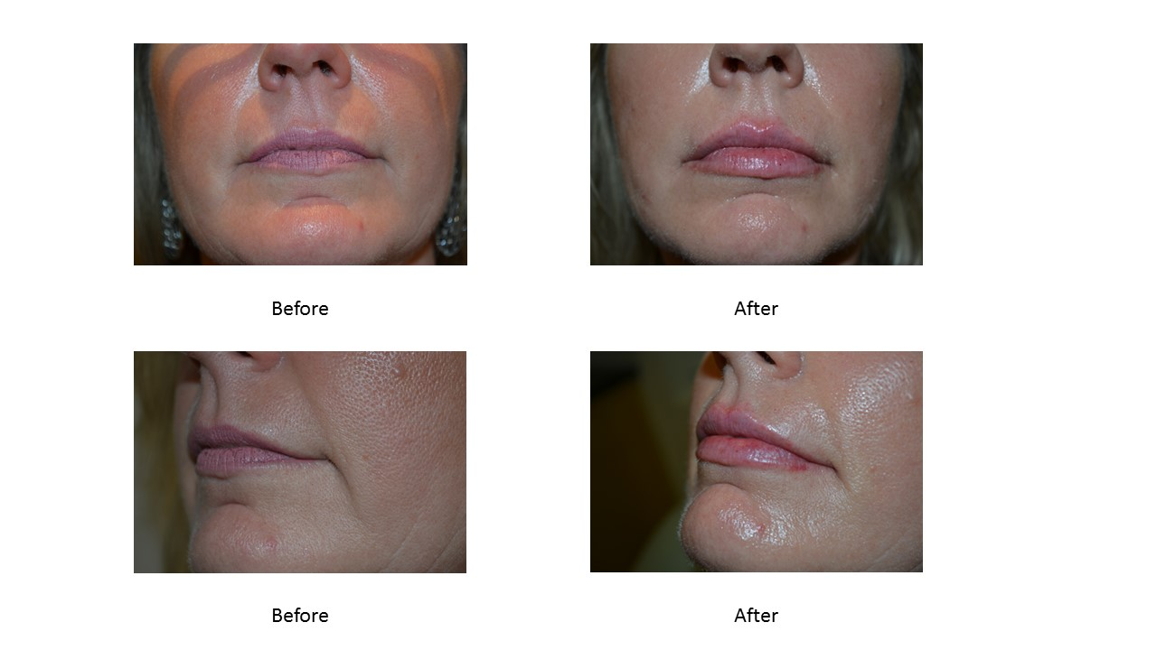 Define Lips with JUVÉDERM VOLBELLA® XC
