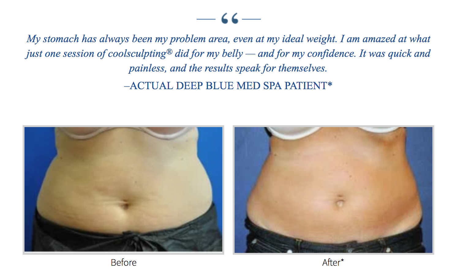 CoolSculpting Fat Reduction, Long Island, Deep Blue Med Spa